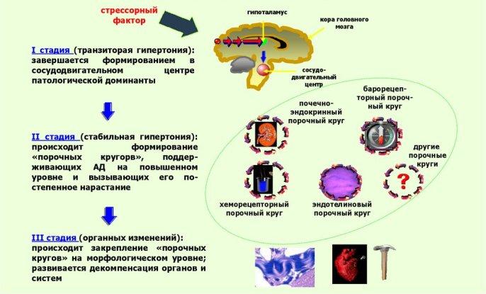 Стадии гипертонической болезни