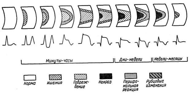 Стадии некроза миокарда на ЭКГ
