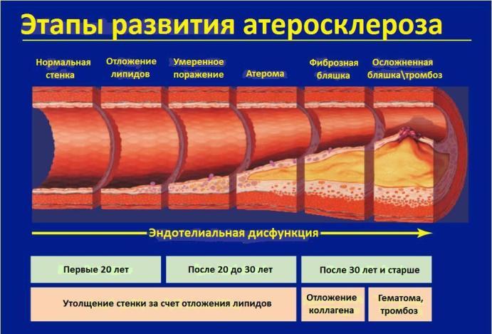 Факторы и стадии развития атеросклероза