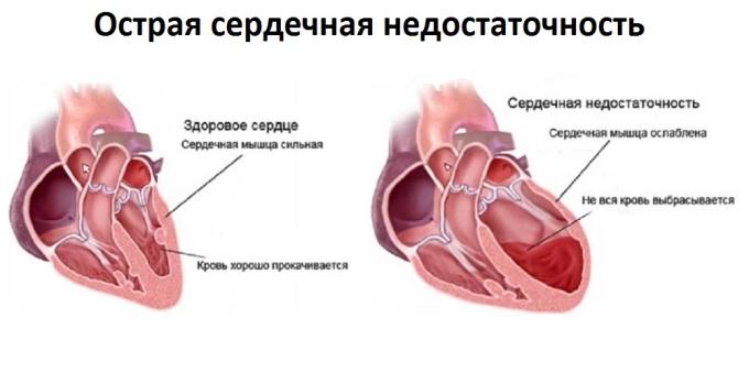 Характеристика заболевания1