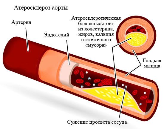 Характеристика и стадии развития заболевания