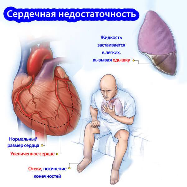 Характеристика сердечной недостаточности