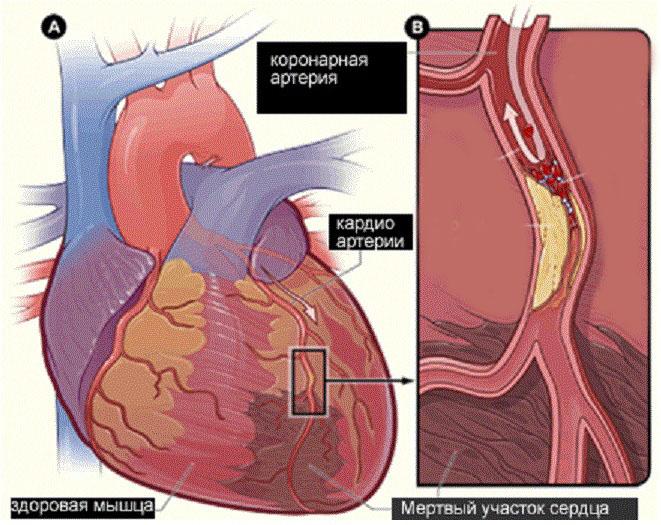 Атеросклеротический кардиосклероз - причины, симптомы, лечение