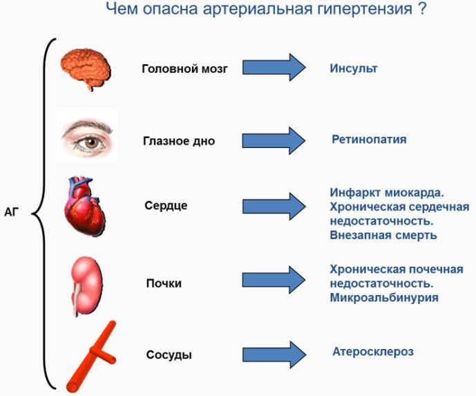 Чем опасна артериальная гипертония