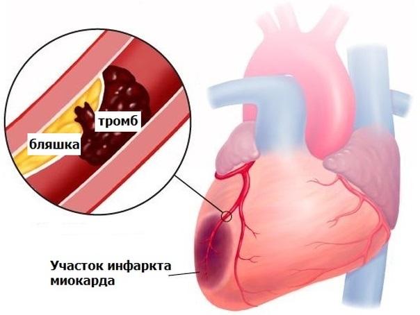 Что собой представляет инфаркт миокарда