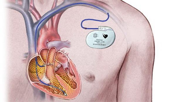 Что такое кардиостимулятор сердца