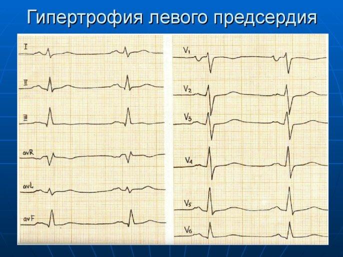 ЭКГ - ГИПЕРТРОФИЯ ЛЕВОГО ПРЕДСЕРДИЯ