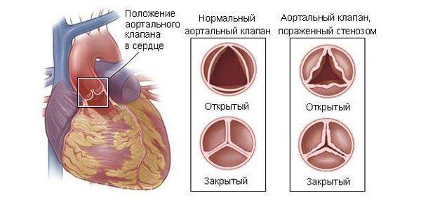 Описание заболевания