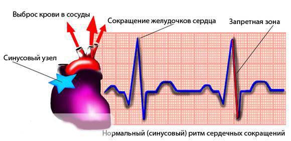 sinusovaja-aritmija-serdca-chto-eto