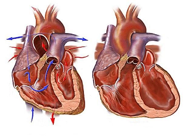 Постинфарктный кардиосклероз - описание1